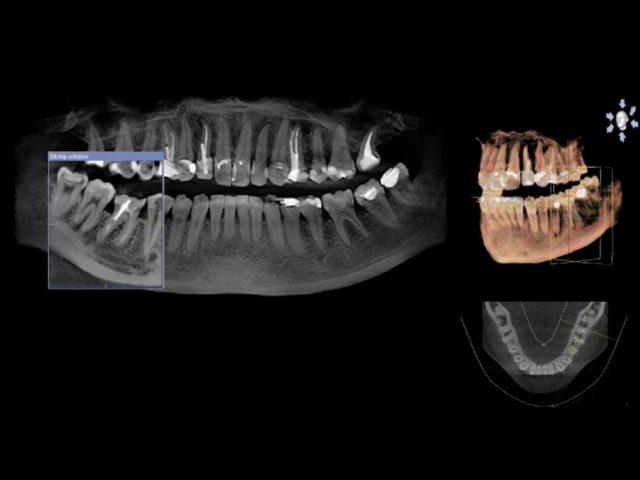 Digitales Röntgen in 3D
